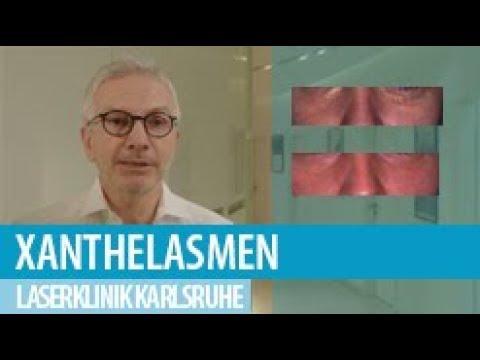 Entfernen kosten österreich xanthelasmen Xanthelasmen entfernen:
