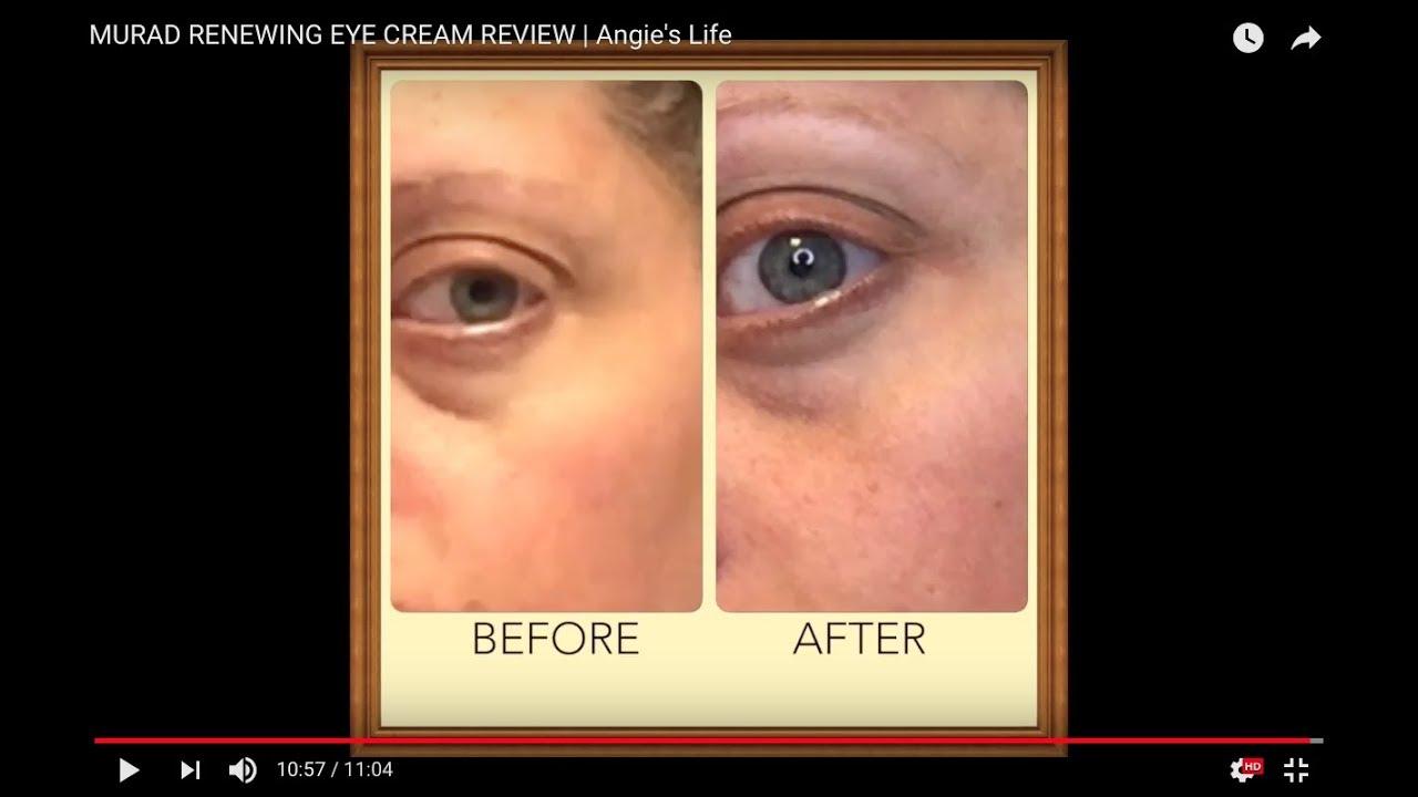 Murad Renewing Eye Cream Review Angie S Life Youtube