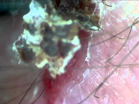 Under The Microscope - The One Inch Scab (Sliced And Diced)