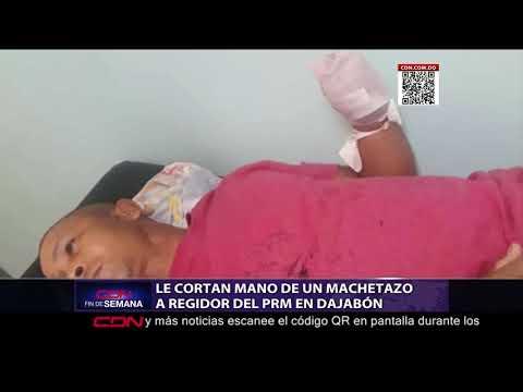 Cortan mano de un machetazo a regidor del PRM en Dajabón
