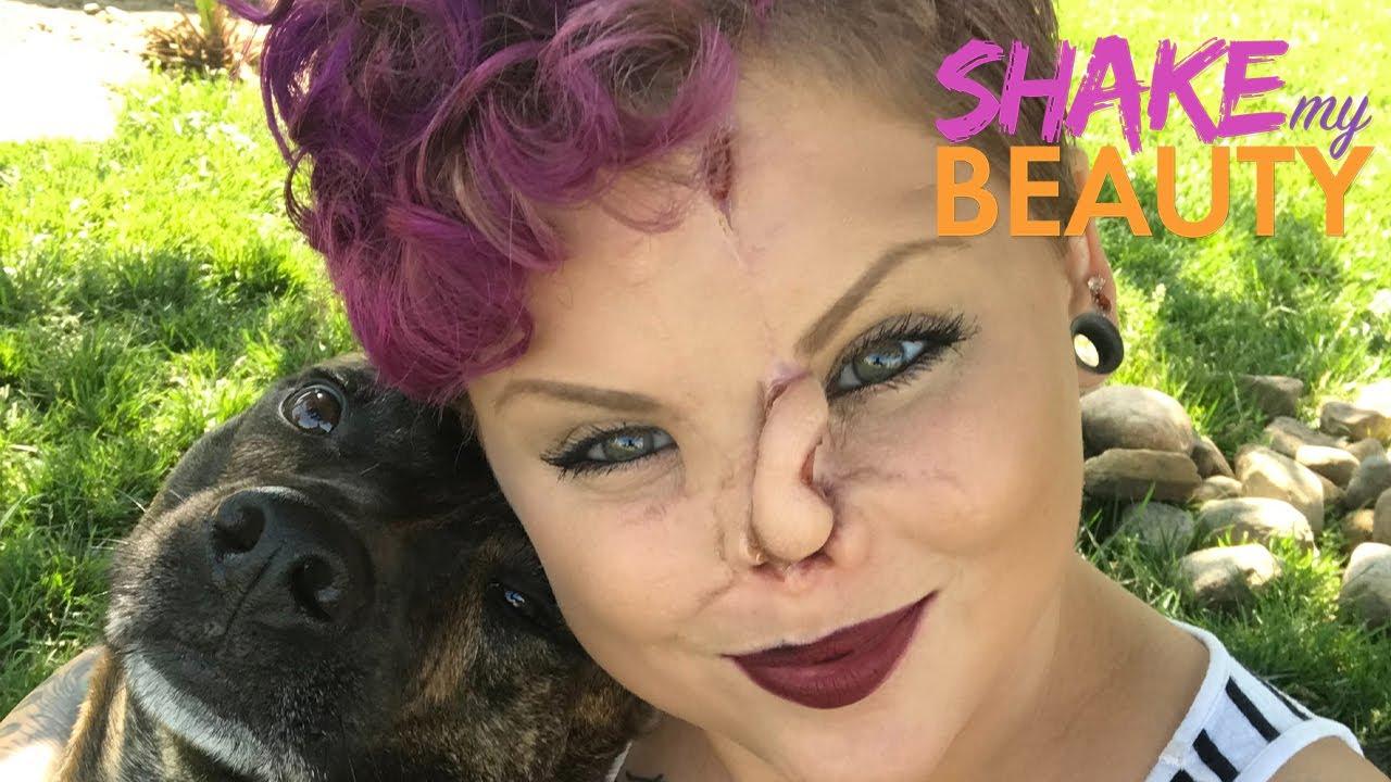A Dog Bit My Nose Off  | SHAKE MY BEAUTY