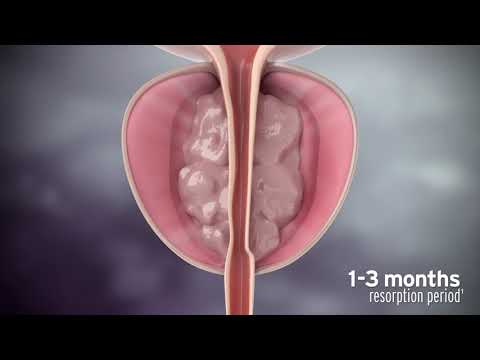 Rezūm Water Vapor Therapy Procedure Animation for Physicians
