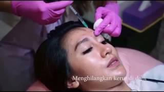 Suntik Botox Untuk Garis Senyum, Garis Kerut Wajah dan Leher, Garis Kerut di Dahi | Jakarta