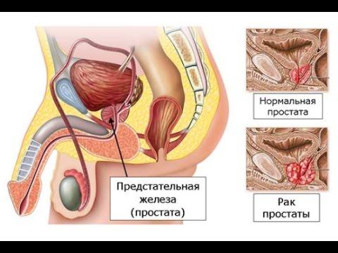 простатит лечение простатита простаты