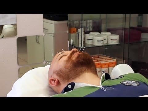 Akupunktur Nedir? Nasıl Yapılır? Kilo Verme & Zayıflama & Migren İçin Kullanımı (Özkaya Tıp Merkezi)