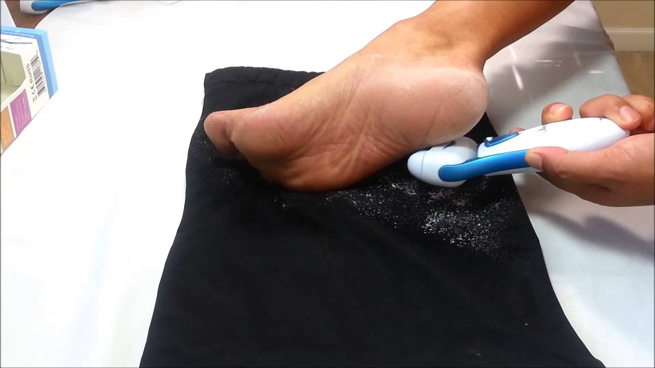 Top rated callus remover by care me seeing is believing go top rated callus remover by care me seeing is believing go barefoot youtube publicscrutiny Choice Image