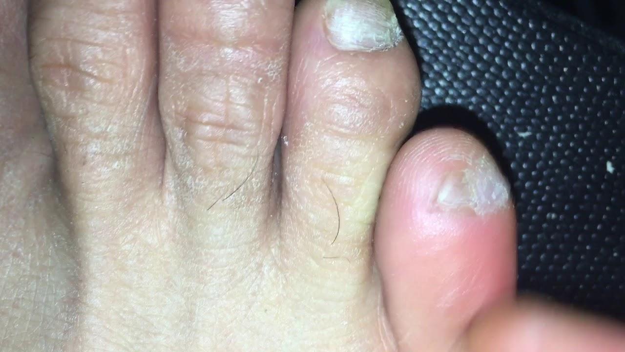 Han Chinese toenail extra pinky toenail removal - YouTube