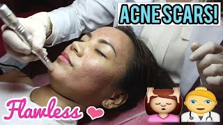 HOW TO GET RID OF ACNE SCARS | Fractional Needling Therapy at Flawless