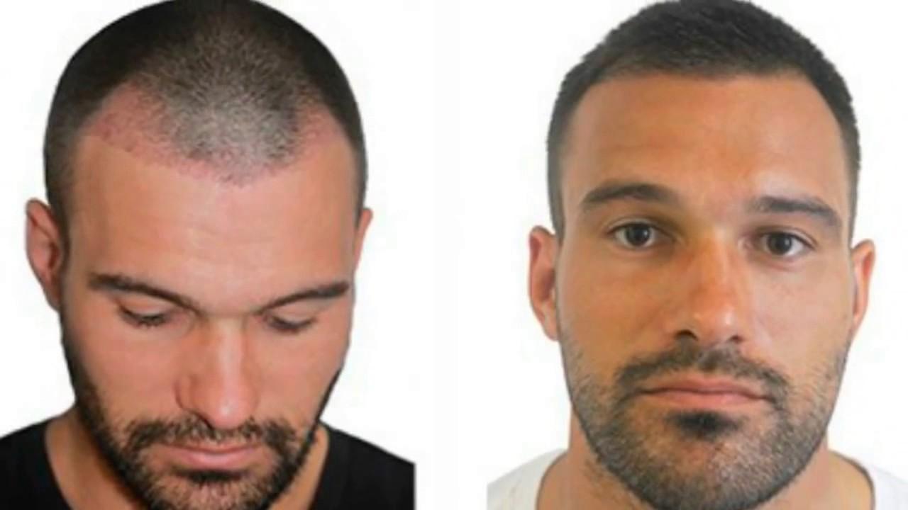 Precio implante capilar turquia