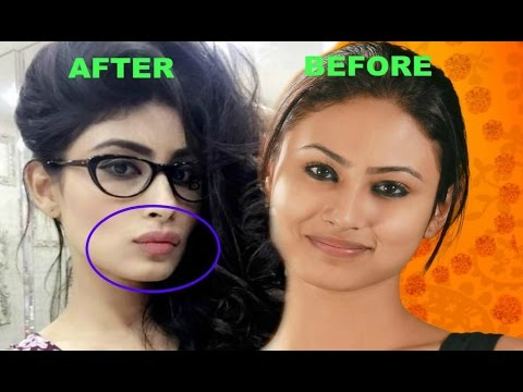 Mouni Roy Lip Job - Before And After