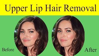 Upper Lip Hair Removal at Home Naturally - Remove Permanently Hair Form Upper Lips Just 2 Items