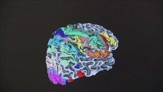 Bilim insanları beynin atlasını çıkardı - science