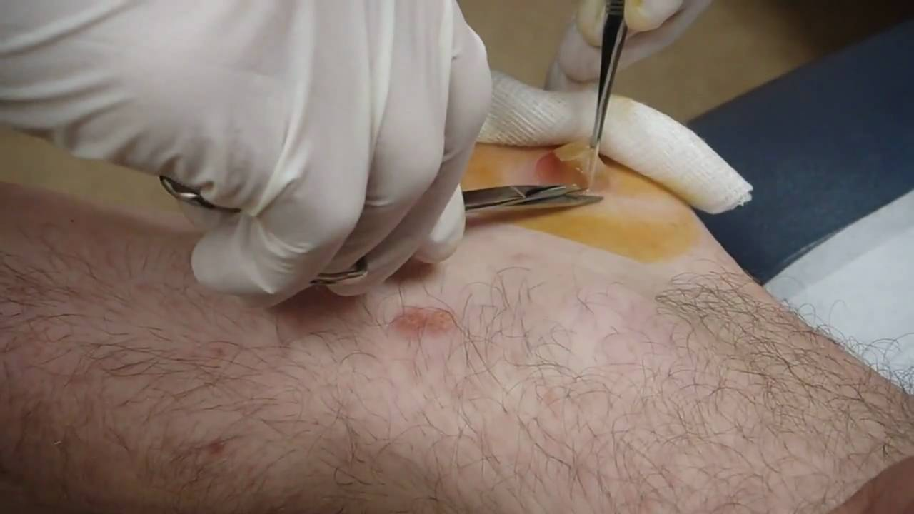 Gelatin Blister From Insect Bite Drained Kent Rilling Youtube