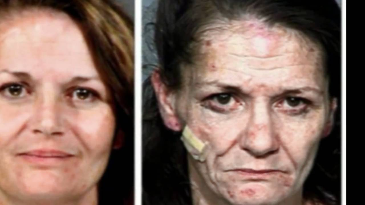 Before pictures and after meth