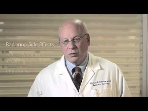 Radiation Therapy Side Effects for Prostate Cancer Patients