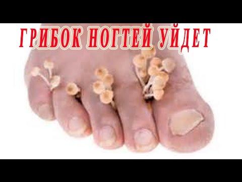 ★ГРИБОК УЙДЕТ! Как вылечить грибок ногтей (ОНИХОМИКОЗ) на ногах в домашних условиях .
