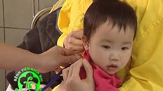 Phát hiện sớm bệnh viêm phổi ở trẻ nhỏ