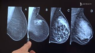 New Guidelines for Mammograms