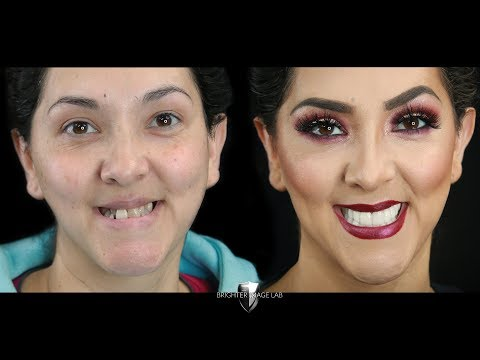 Watch Master Makeup Artist Get Smile Makeover Veneers- No Dentist- Brighter Image Lab