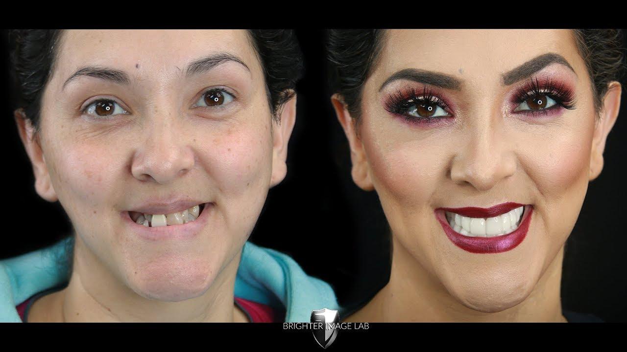 Youtube Video Watch Master Makeup Artist Get Smile Makeover Veneers- No Dentist- Brighter Image Lab