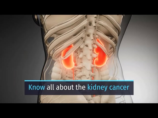 Know All About Kidney Cancer