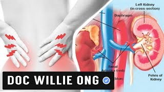 How to Lower your Creatinine: Healthy Foods - by Doc Willie Ong