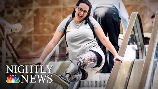 Woman Inspired To Become A Nurse After Losing Both Legs | NBC Nightly News