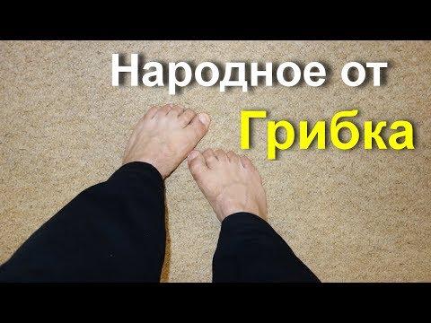 Лечение микоза стоп и ногтей народными средствами