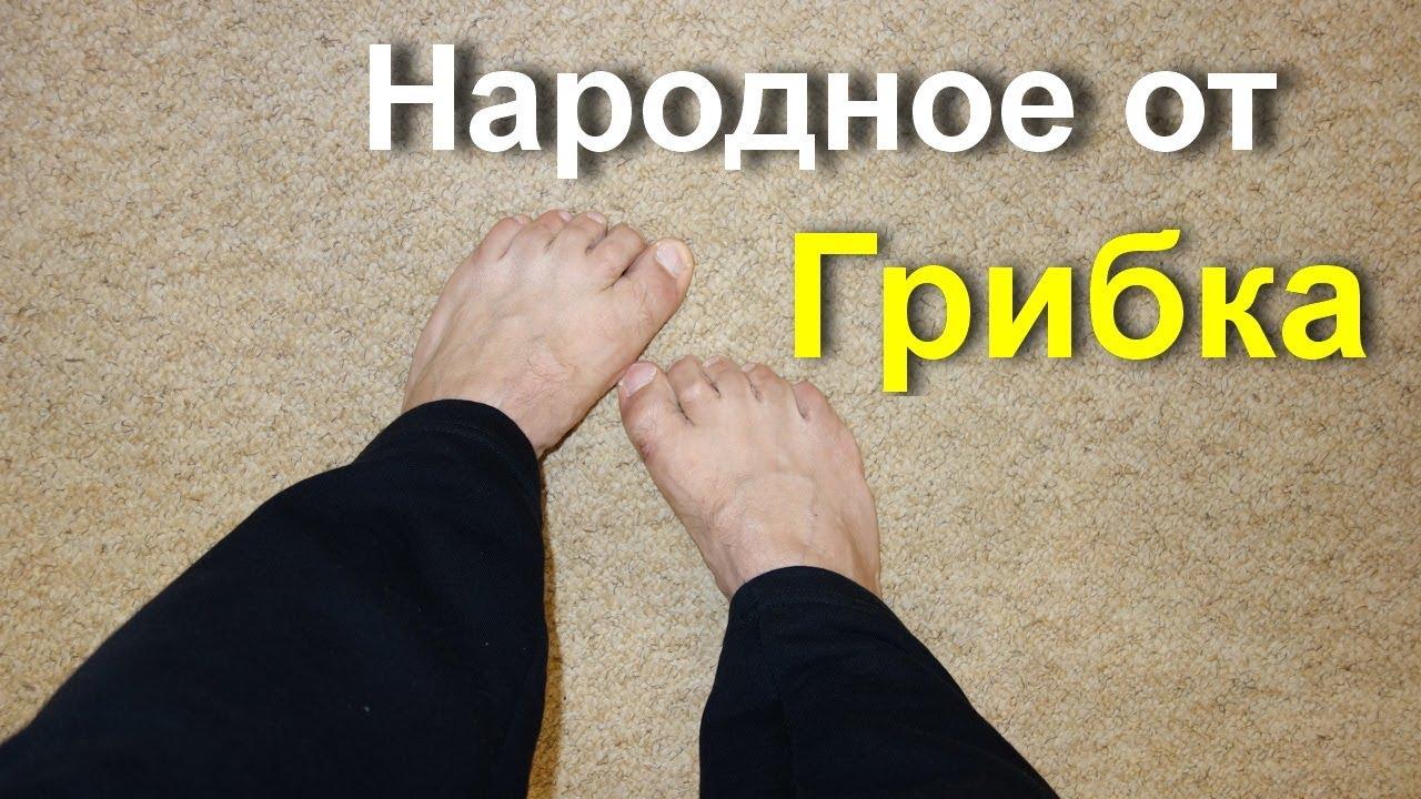 Косточка на ноге - как лечить народными средствами в домашних условиях