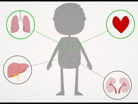 Fisioterapia y transplantes