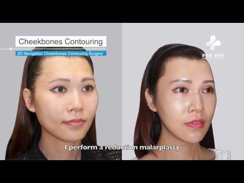 Dr. Adrian M. Hsieh|FFS (Facial Feminization Surgery)