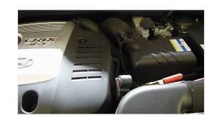 Nettoyage moteur a l'hydrogene sur hyundai 2l CRDI avec Carbon Cleaning