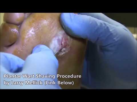 Worst Plantar Warts Ever Plantar Wart Treatment From
