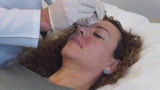Dermal Fillers & Botox Virginia Institute of Plastic Surgery | Richmond