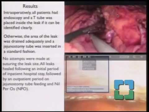 Innovations in Surgery - Ep. 3- Sleeve Gastrectomy: Procedure of Choice for the Middle East