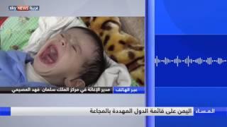 اليمن على قائمة الدول المهددة بالمجاعة