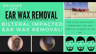 BILATERAL IMPACTED EAR WAX REMOVAL - EP427