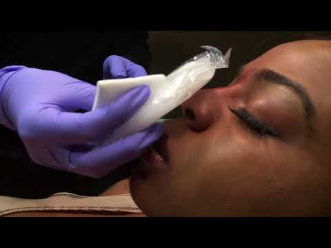 non-surgical-nose-job-by-dr.-naderi
