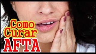 Como curar aftas na boca rapidamente