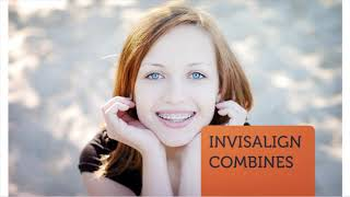 Miami Dental Group Invisalign Treatment in Kendall