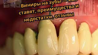 Виниры на зубы — как ставят, преимущества и недостатки, отзывы