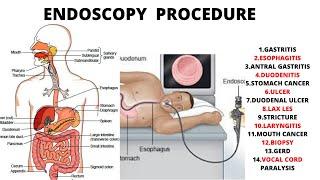 #endoscopy #ulcer #stomachpain #antralgastritis #duodenal ulcer #cancer #carcinoma #esophagitis #fundal erosion gastritis #bile reflux++ #bilegastrit...