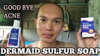 DermAid SULFUR SOAP | Good Bye ACNE