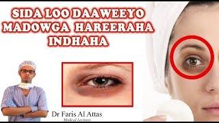 SIDA LOO DAAWEEYO MADOWGA HAREERAHA INDHAHA. Dr faris