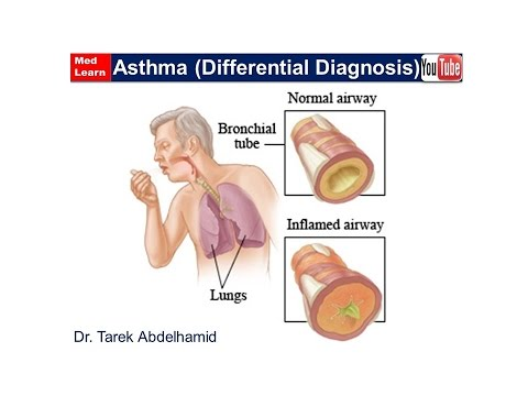 Chest (Differential Diagnosis of Asthma)