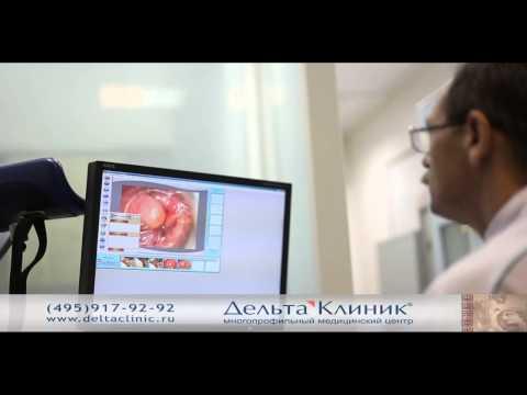 Видеоаноскопия. Аноскопия видео.