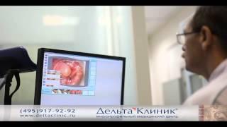 Видеоаноскопия. Аноскопия видео.(проктолог - Мухин Анатолий Геннадиевич. http://www.doctorprocto.ru/anoskopiya., 2014-01-29T17:31:29.000Z)