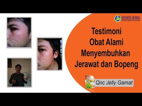 cara-menghilangkan-jerawat-dan-bopeng-dengan-cepat-dengan-herbal-alami-||-testimoni-qnc-jelly-gamat