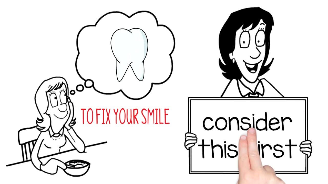 Best dental animation ever - YouTube