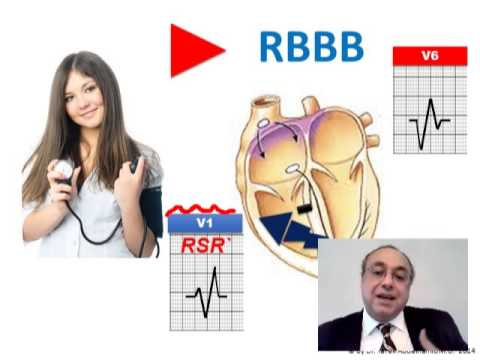 ECG QRS DURATION